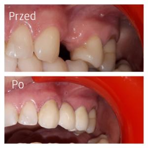Przed leczeniem i po