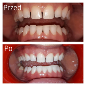 Leczenie stomatologiczne - efekty